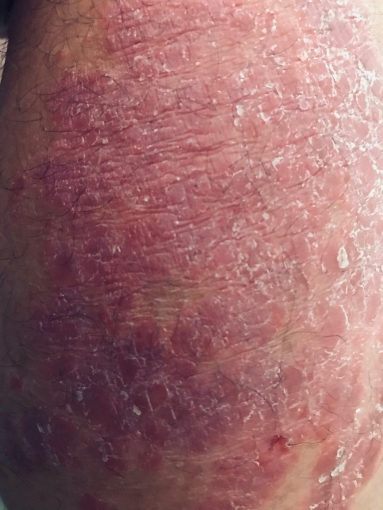 A picture of the psoriasis on my calf.